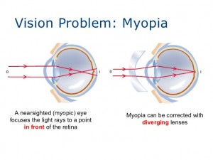 Diverging lens for correcting Nearsightedness